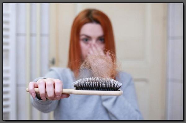 Hereditary-Hair-Loss-in-Women